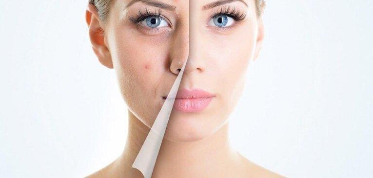 10 ошибок по уходу за кожей, которые усугубляют состояние акне